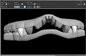 ::Spiul - Proceso::-spiul_dientes.jpg