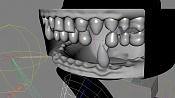 Problema con dientes-bocabierta.1.jpg
