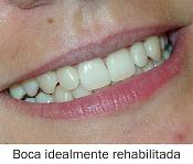 -dientes.jpg