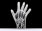 rayos x de mano-mano15.jpg