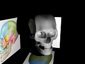 Medico en aprietos:texturas para anatomía-crane.jpg