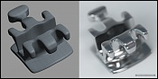 Cosas dentales  con modo -bracket_dental.jpg